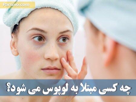 علایم بیماری لوپوس , داروی برای بیماری لوپوس