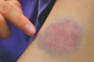 علت خونریزی و کبودی پوست