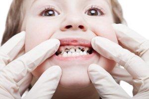 پوسیدگی دندان و پیشگیری از پوسیدگی دندان