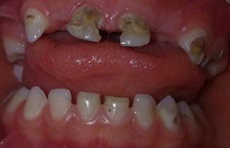پوسیدگی دندان و پیشگیری از پوسیدگی دندان-2